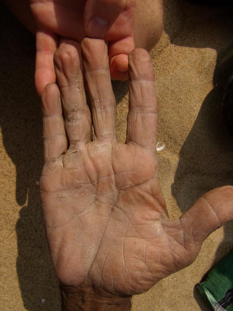 короткая линия жизни на руке фото